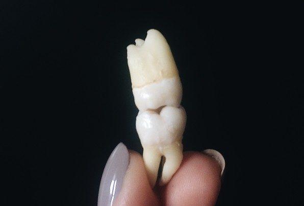uniodonto-dente-siso
