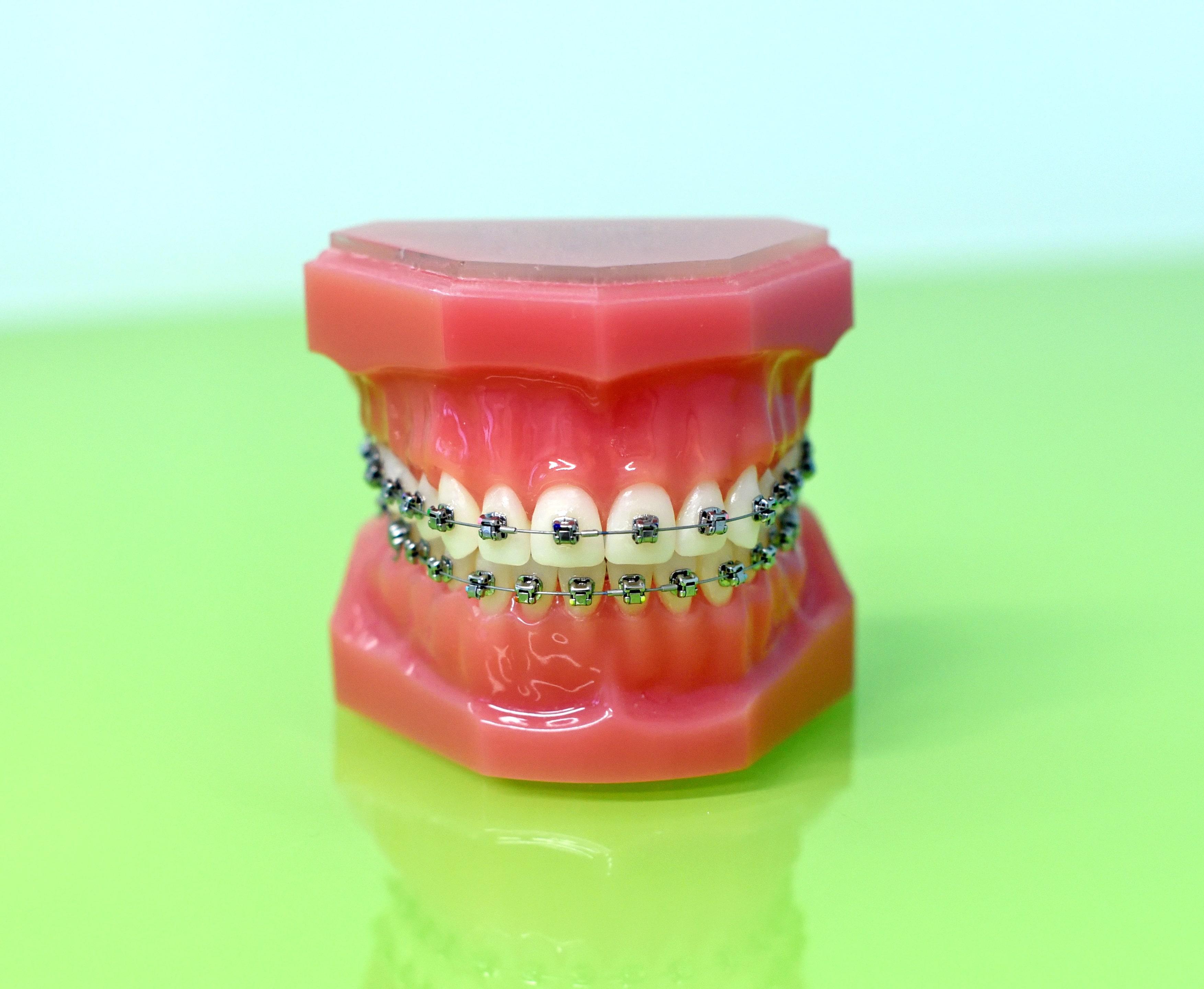 uniodonto-paulista-aparelho-ortodontico-cuidados